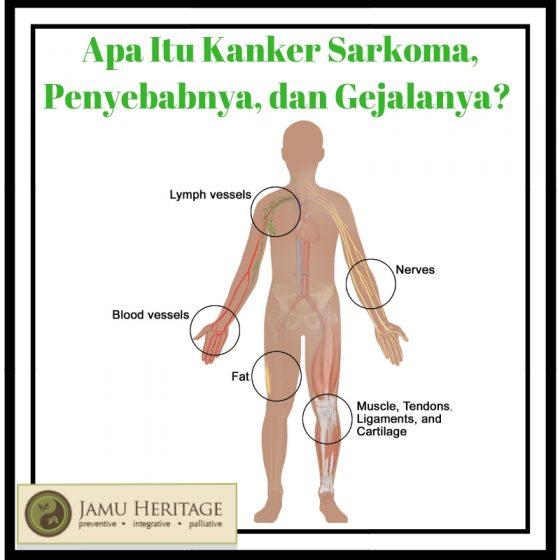 Kanker Sarcoma